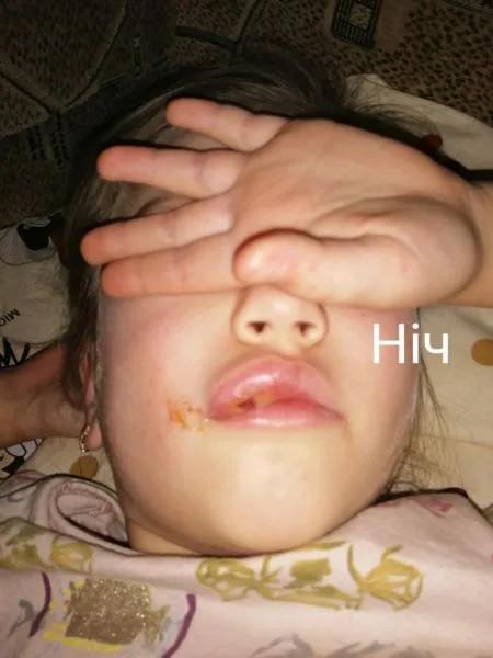 Ребенок, ставший жертвой стоматолога-садиста в Ровно