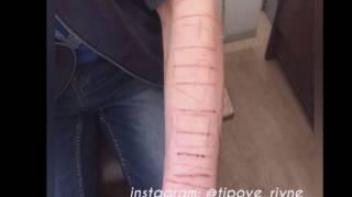 В Ровно спасли подростка, которому в «группах смерти» дали опасное задание