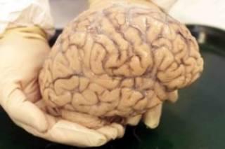 Ученые из Израиля узнали нечто неожиданное о развитии человеческого мозга