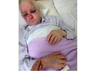 На Буковине сторонники ПЦУ жестоко избили 63-летнего прихожанина УПЦ