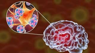 Ученые выяснили, как коронавирус проникает в мозг человека