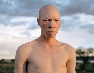 Из-за пандемии коронавируса колдуны стали массово убивать альбиносов, – ООН