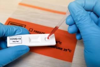 В Минздраве рассказали, нужно ли делать тест на антитела после вакцинации