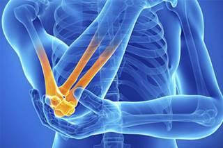 Всемирный день борьбы с артритом: какой праздник отмечается 12 октября 2021 года